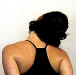 Как избавиться от боли в шее при болезни Бехтерева